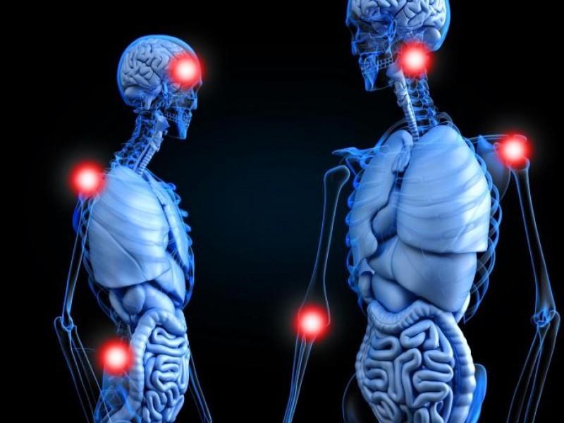 Artritis reumatoidea: Diagnóstico y tratamiento