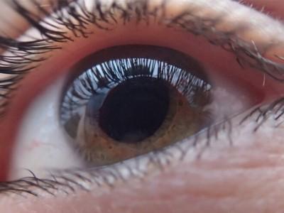 Emergencias oculares en atención primaria